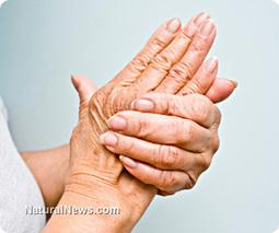 Strong link found between rheumatoid arthritis and vitamin D deficiency: Study | Diabetes, NHS | Scoop.it