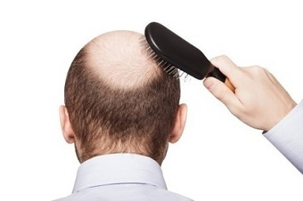 Consider a Hair Transplant in Mexico to Gain More Self-Confidence | BajaHairCenter | Scoop.it
