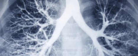 World-first cystic fibrosis treatment could be available within 5 years | Genome Engineering | Scoop.it