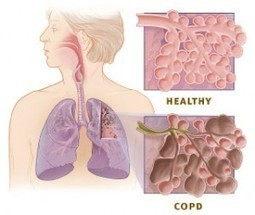 Home Salt Therapy Proves Helpful in Chronic Obstructive Pulmonary Disease (COPD) | Home Salt Therapy and Saltair Salinizer Tips for Best Results | Scoop.it