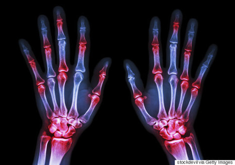 The Nano Science Advance That's Improving The Lives Of Arthritis Sufferers | 21st Century Innovative Technologies and Developments as also discoveries, curiosity ( insolite)... | Scoop.it