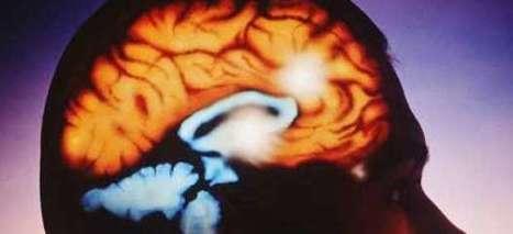 Cómo enfrentarse a un tumor cerebral: el paciente decide - 20minutos.es | infomedicina | Scoop.it