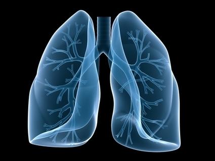 Enfermedad Pulmonar Obstructiva Crónica (EPOC): cuarta causa de muerte en el mundo   Salud, deporte y viajar   Scoop.it