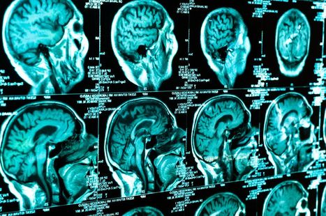 Traumatic Brain Injury Can Lead to Higher Risk of Death From Subsequent Trauma | California Brain Injury Attorney News | Scoop.it