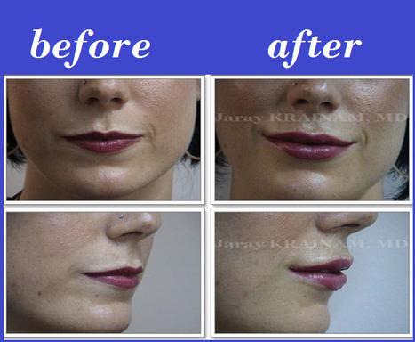 Lip Filler Injection Thailand | Bangkok Aesthetic Surgery Center | Bangkok Aesthetic Surgery | Scoop.it