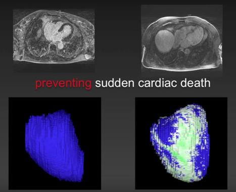 Desarrollando tecnologías de diagnóstico cardiológico de forma colaborativa | Salud Conectada | Scoop.it