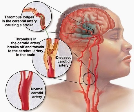 Heart Healthy: Causes of stroke: How do you get a stroke? | Food & Health | Scoop.it