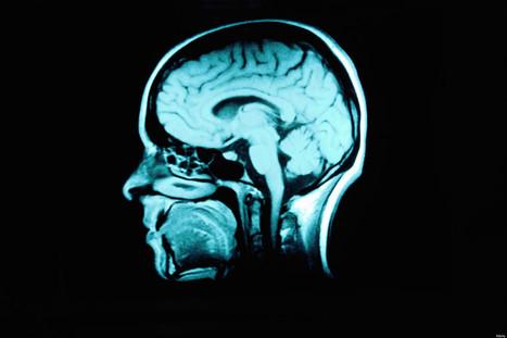 Stimuler certaines zones du cerveau permet de réduire la douleur à ... - Le Huffington Post | Bien être et Sport en entreprise | Scoop.it