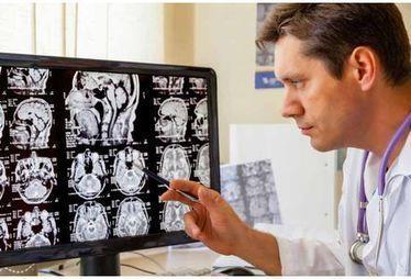 Maladie d'Alzheimer : un nouvel outil d'imagerie pour la diagnostiquer | Aidants familiaux | Scoop.it