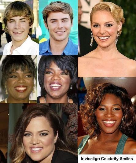 Robison Orthodontics Mesa AZ Invisalign Braces Celebrity Smiles | Orthodontist in Mesa and Gilbert AZ | Scoop.it