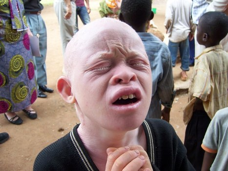 'Albino Hunters' Dismember Tanzanians for 'Magical' Powers | East Africa Business Online | Scoop.it