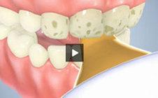 Post-Operative Instructions | Pediatric Dentist | Scoop.it
