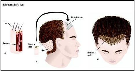 The Process of Hair Transplants is Painless | Hair's Only Solution | Scoop.it