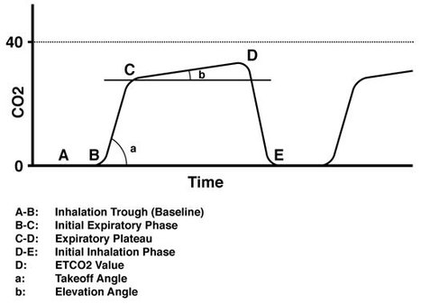 How capnography works explained simply. | anaesthesia | Scoop.it