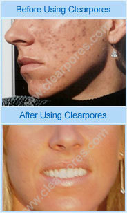 A Review of ClearPores®: Within 2 Weeks of Taking ClearPores® My Skin Cleared Up | Natural Health and Wellness | Scoop.it