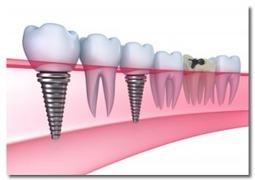 Dental Implants «  Dentist   Las Vegas Dental Group Dentists   702-323-0820   Dental   Scoop.it