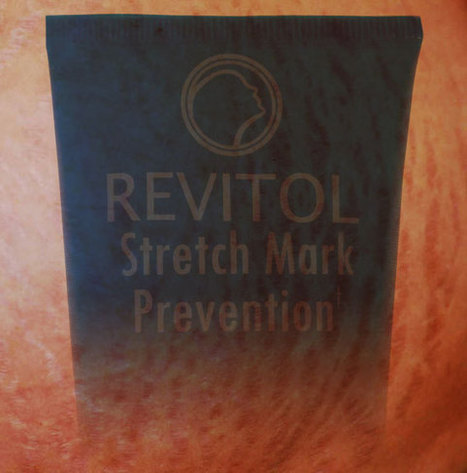 Straight Forward Examination of Your Stretch Marks Options | Live PR News | Scoop.it