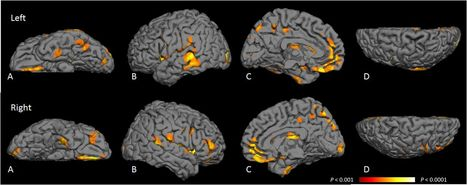 Brain Atrophy in Type 2 Diabetes | Neuroscience: Research News | Scoop.it