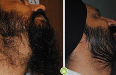 Cost of Hair Transplant India, Best Hair Transplant cost, Hair transplantation cost India | FUE Hair Transplant in India | Scoop.it