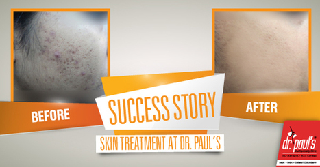 Success Story- Acne Treatment | Skin Care | Scoop.it