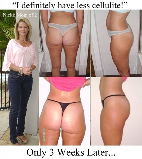 Naked Beauty The Symulast Method Review | Truth about cellulite | Scoop.it
