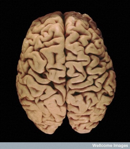 La régénération du cerveau démontrée grâce aux bombes atomiques | Culture | Scoop.it