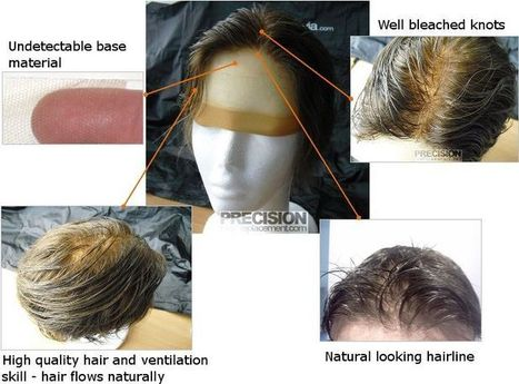 Restoration Clinics of Australia | Precision Hair Plus | Scoop.it