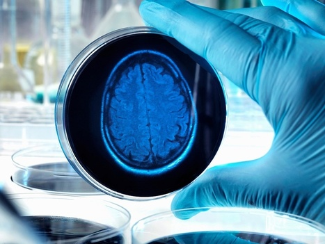 Alzheimer's Disease - Tackling Inflammation In The Brain | ONE HealthCare Worldwide | Scoop.it
