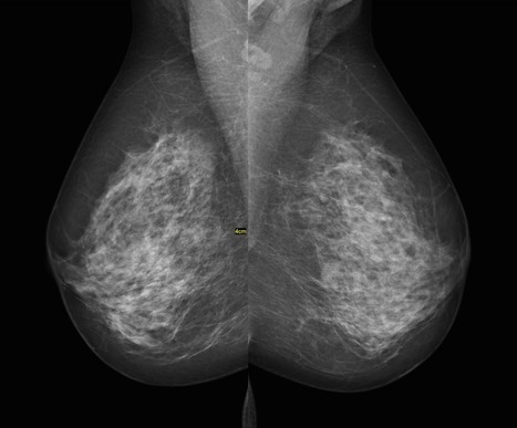 Researchers Grow Breast Tissue In A Lab | Pipettes, Calibration and Metrology | Scoop.it