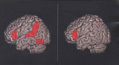 Brain Anatomy of Dyslexia Is Not the Same in Men and Women, Boys and Girls | Neuroscience News | Eagle Hill Southport | Scoop.it