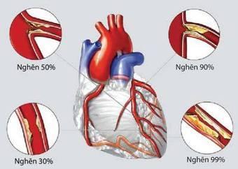 Triệu chứng phân loại biến chứng cách chữa trị bệnh cao huyết áp   anhdanh_90   Scoop.it