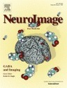 Fraud topples second neuroscience word processing paper | Brain Methods and Others | Scoop.it
