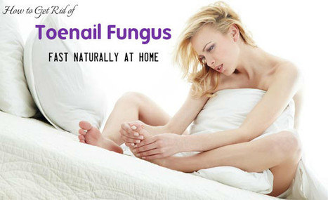 How to Get Rid of Toenail Fungus Fast Naturally at Home - Stylish Walks | Beauty Fashion and Makeup Tips or Ideas | Scoop.it