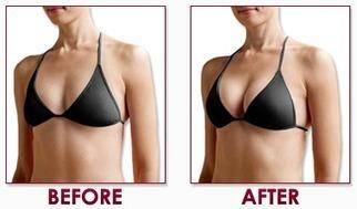 Breast Creams with No Parabens | Does Brestrogen Work | Scoop.it
