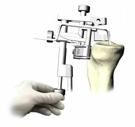 Orthopedic Devices Market (Hip, Knee, Spine, Shoulder, Elbow, Foot And Ankle, Craniomaxillofacial And Other Extremities) | Market Research Report | Scoop.it