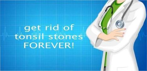 Tonsil Stone Removal | Tonsil Stone Removal the Easy Way! | Scoop.it