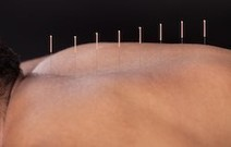 Acupuncture Soothes Fibromyalgia And Helps Sleep | Acupuncturist In Morristown, Acupuncture In Morristown | Scoop.it
