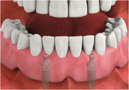 dental implant clinic | Orthodontist High Wycombe | Scoop.it