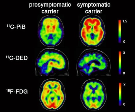 Inflammatory Changes in the Brain Appear Twenty Years Before Alzheimer's Onset | the plastic brain | Scoop.it
