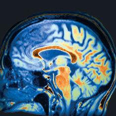 Can Brain Scans Diagnose Mental Illness?: Scientific American   Treat mental illness   Scoop.it