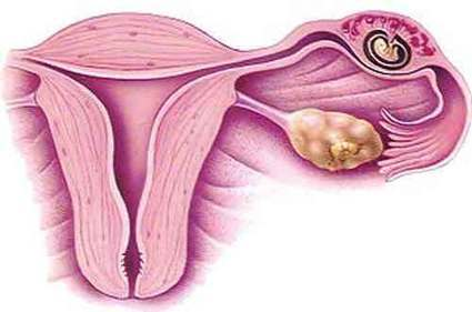 Ectopic pregnancy | HEALTH News | Scoop.it