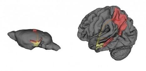 Aclaran dónde exactamente comienza el Mal de Alzheimer y cómo ... - Noticias de la Ciencia y la Tecnología   Postpolio síndrome   Scoop.it