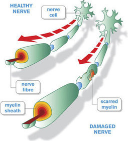 Multiple Sclerosis Could Be Reversed By Activating Stem Cells   Ecological   Scoop.it