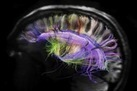 Connectivity is Key to Understanding the Brain - LiveScience.com | Social Neuroscience Advances | Scoop.it