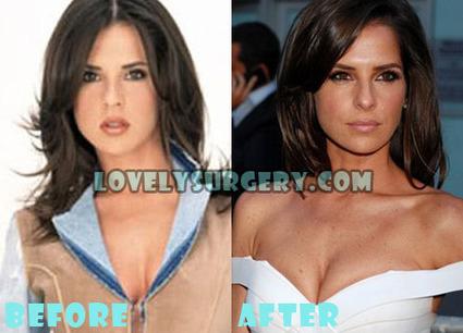 Kelly Monaco Plastic Surgery Boob Job and Nose Job Rumor | Celebrity Plastic Surgery | Scoop.it