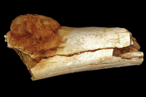 Fossil tumour is oldest evidence of human cancer discovered yet | Geology | Scoop.it