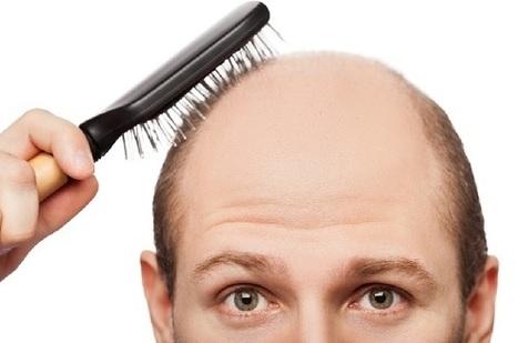 Erkeklerde Saç Dökülmesi Nedenleri ve Tedavi Yolları   Genel   Scoop.it