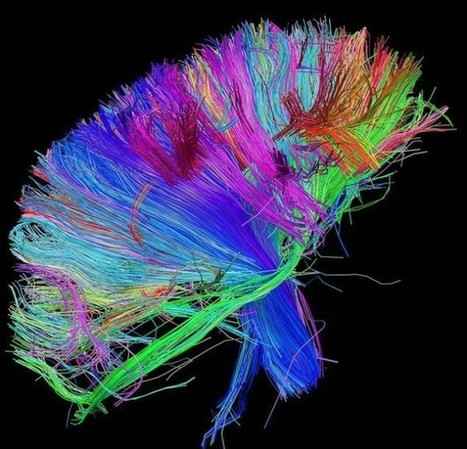 Can brain scans really tell us what makes something beautiful? | All Brains | Scoop.it