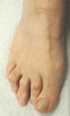 Why Visit A Podiatrist by Robert Fogarty | mike chan | Scoop.it
