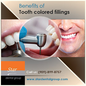 Tooth Colored Fillings - Why Preferred Over Metal Fillings   Star Dental Group   Scoop.it